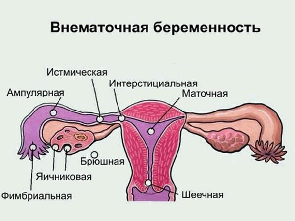 Боль в пояснице слева отдает в низ живота и в ногу