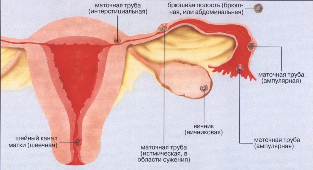 Минет как причина внематочной беременности