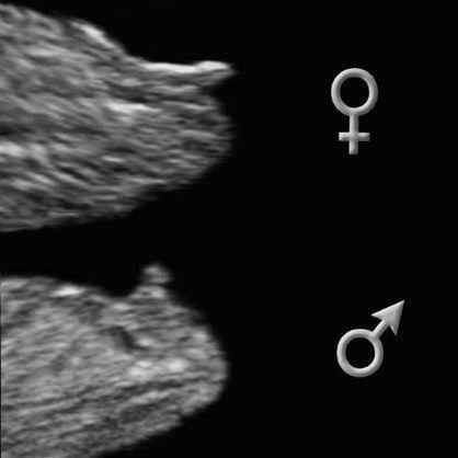 Беременность мальчиком и девочкой отличия форум