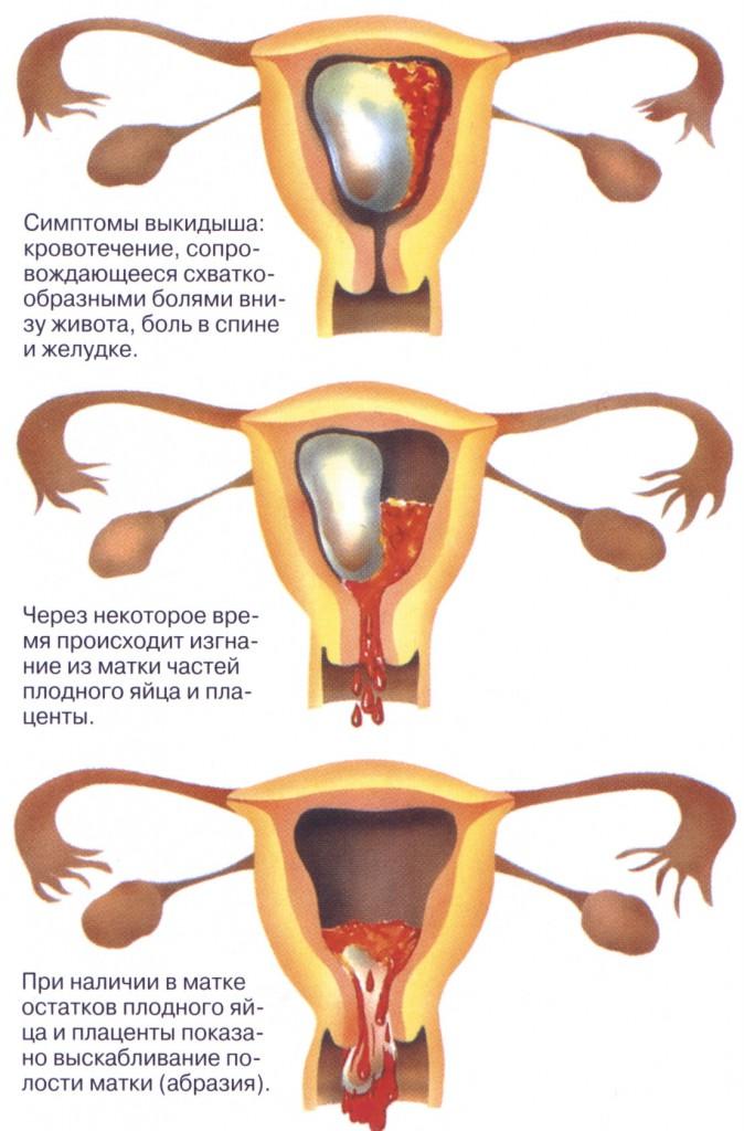 Болит живот на 4 неделе беременности как при месячных