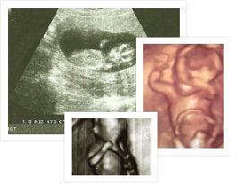 13 недель беременность узи