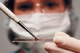Лейкоциты в мазке при беременности, мазок повышены лейкоциты при беременности
